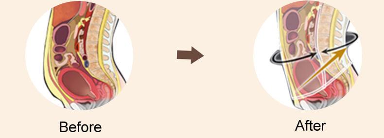 bauchgurt nach geburt vor und nachher