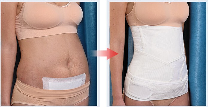 waist cincher trimmer-slimming tummy tuck body shaper recovery postpartum belly hand belts